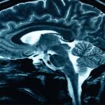 8 Shkaqet që sjellin dhimbjen e kokës